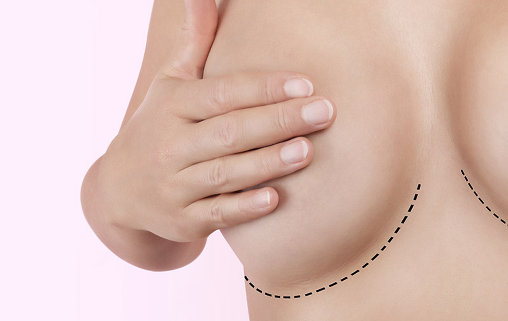 Operație de augumentare mamară extremă