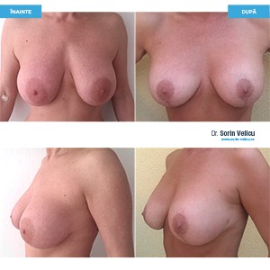 Reconstrucție sâni