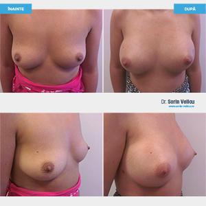 Mamoplastie augmentare