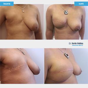 Reconstrucție sân (cu proteze și lambou muscular)
