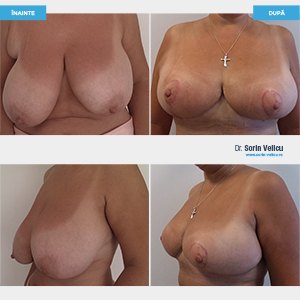 Mamoplastie reducțională