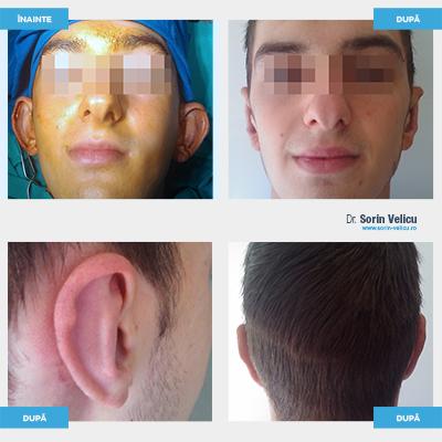 Urechi proeminente - Procedeul Converse