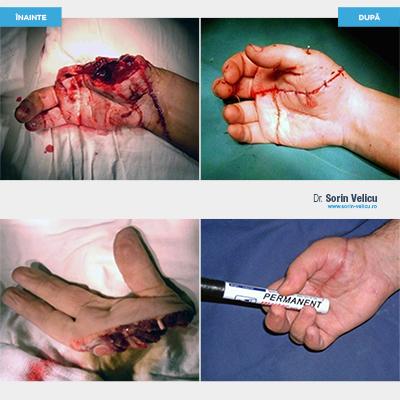 Replantare (amputare ghilotină)