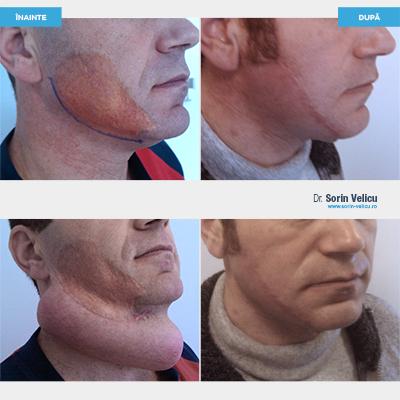 Expandare tisulară (cicatrice vicioasă postcombustațională facială)